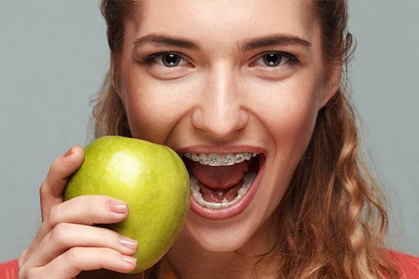 Braces Hadfield Dental Group Glenroy Dentist