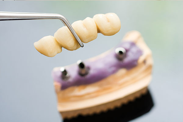 Dental Bridge Hadfield Dental Group Glenroy Dentist